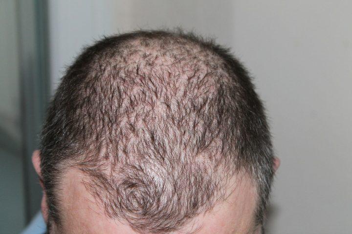 A hajhullás elleni kapszula egy fantasztikus termék