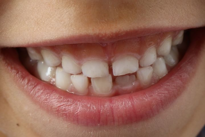 Melyik termék a legjobb fogfehérítő?